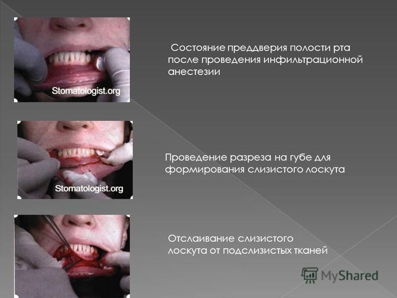 Состояние преддверия полости рта после проведения инфильтрационной анестезии Проведение разреза на губе для формирования слизистого лоскута Отслаивание слизистого лоскута от подслизистых тканей