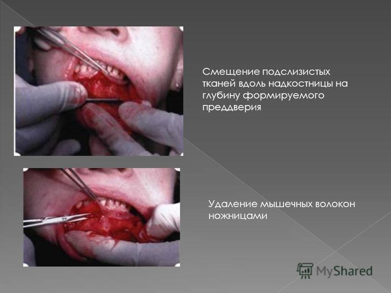 Смещение подслизистых тканей вдоль надкостницы на глубину формируемого преддверия Удаление мышечных волокон ножницами