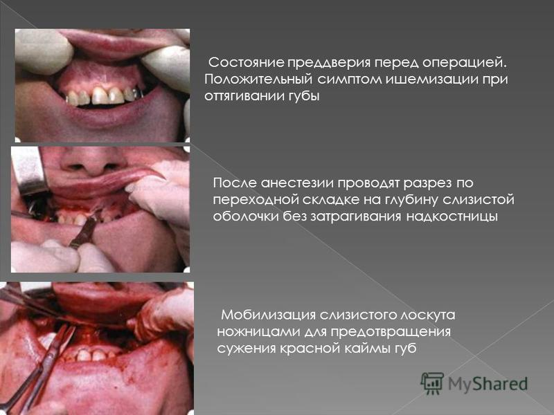 Состояние преддверия перед операцией. Положительный симптом ишемизации при оттягивании губы После анестезии проводят разрез по переходной складке на глубину слизистой оболочки без затрагивания надкостницы Мобилизация слизистого лоскута ножницами для