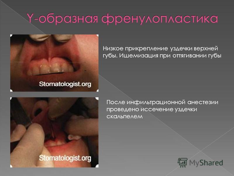 Низкое прикрепление уздечки верхней губы. Ишемизация при оттягивании губы После инфильтрационной анестезии проведено иссечение уздечки скальпелем