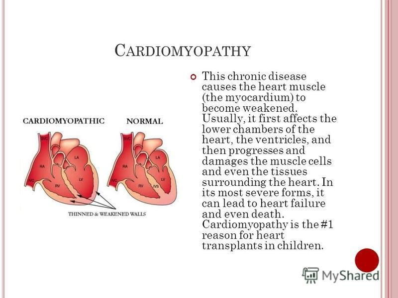 C ARDIOMYOPATHY This chronic disease causes the heart muscle (the myocardium) to become weakened. Usually, it first affects the lower chambers of the heart, the ventricles, and then progresses and damages the muscle cells and even the tissues surroun