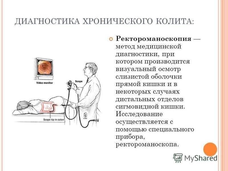 ДИАГНОСТИКА ХРОНИЧЕСКОГО КОЛИТА: Ректороманоскопия метод медицинской диагностики, при котором производится визуальный осмотр слизистой оболочки прямой кишки и в некоторых случаях дистальных отделов сигмовидной кишки. Исследование осуществляется с пом