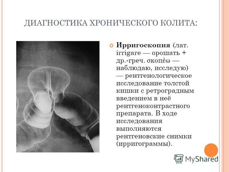 ДИАГНОСТИКА ХРОНИЧЕСКОГО КОЛИТА : Ирригоскопия (лат. irrigare орошать + др.-греч. σκοπέω наблюдаю, исследую) рентгенологическое исследование толстой кишки с ретроградным введением в неё рентгеноконтрастного препарата. В ходе исследования выполняются