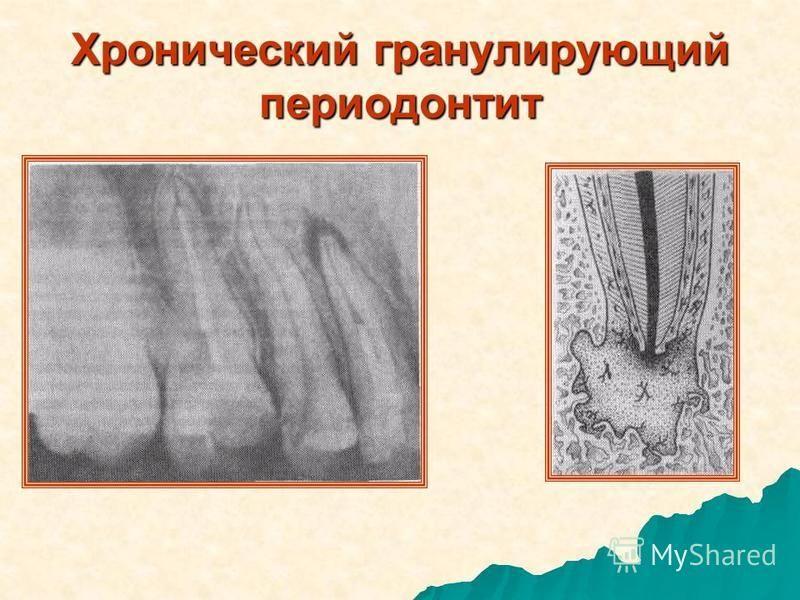 Хронический гранулирующий периодонтит