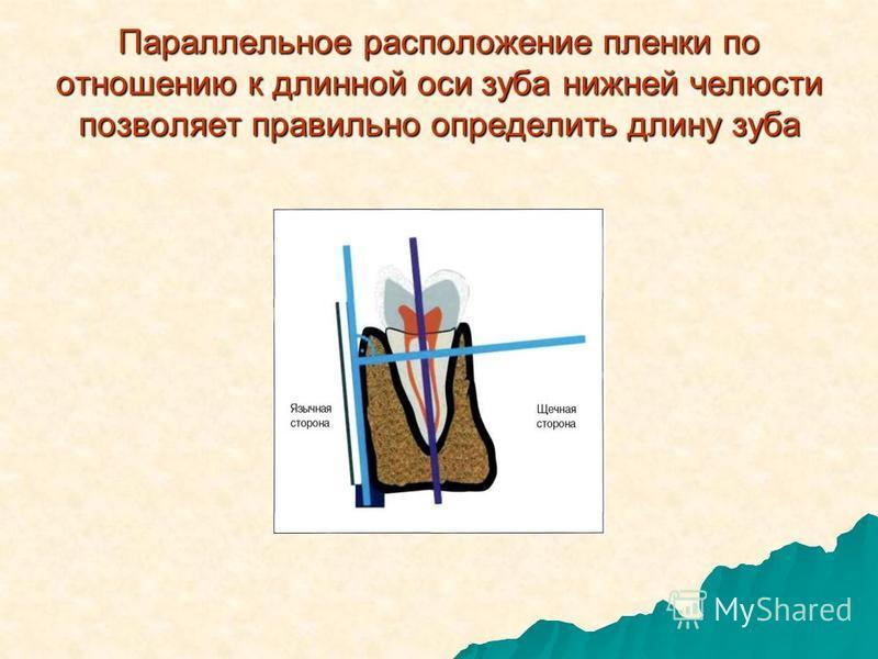 Параллельное расположение пленки по отношению к длинной оси зуба нижней челюсти позволяет правильно определить длину зуба