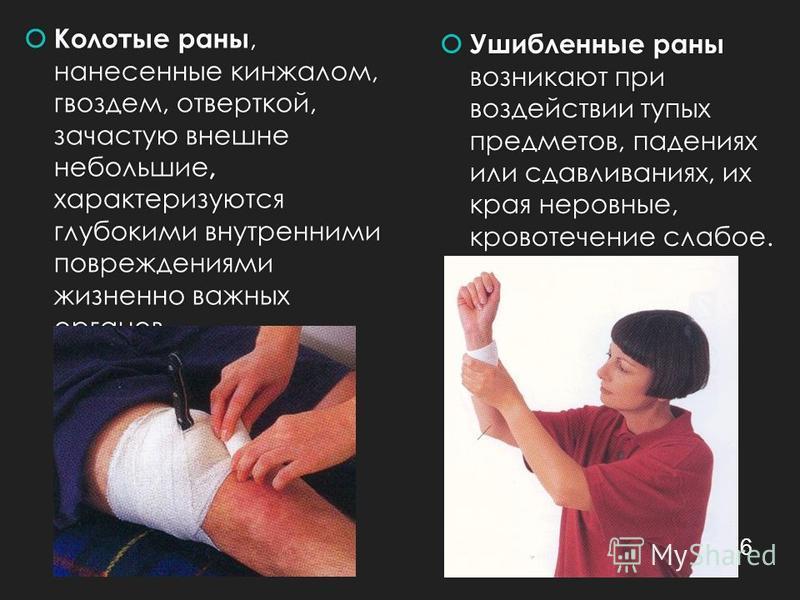 Колотые раны, нанесенные кинжалом, гвоздем, отверткой, зачастую внешне небольшие, характеризуются глубокими внутренними повреждениями жизненно важных органов. Ушибленные раны возникают при воздействии тупых предметов, падениях или сдавливаниях, их кр