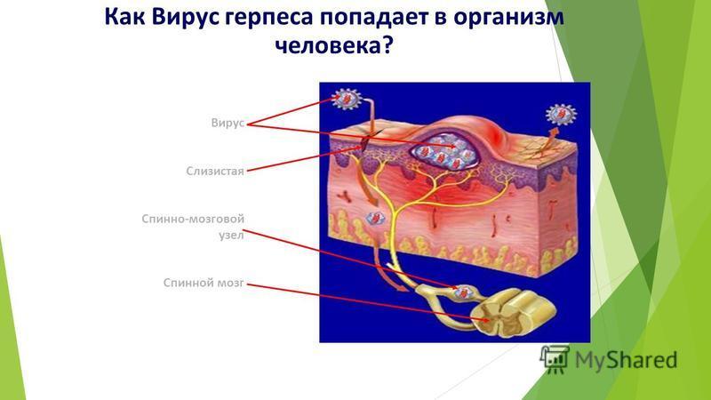 Как Вирус герпеса попадает в организм человека? Вирус Слизистая Спинно-мозговой узел Спинной мозг
