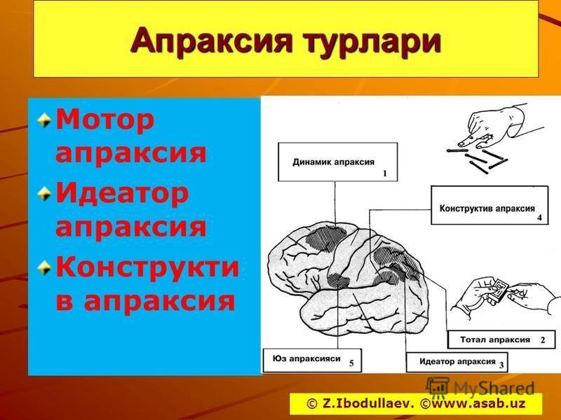 Апраксия турлари Мотор апраксия Идеатор апраксия Конструкти в апраксия © Z.Ibodullaev. ©www.asab.uz