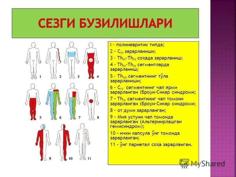 I - полиневритик типда; 2 – C VI зарарланиши; 3 - Th IV -Th IX со ҳ ада зарарланиш; 4 - Th IV -Th IX сегментлорда зарарланиш; 5 - Th VII сегментнинг тўла зарарланиши; 6 – C IV сегментнинг чоп ярми зарарланган (Броун-Сикар синдромы; 7 – Th IV сегментн