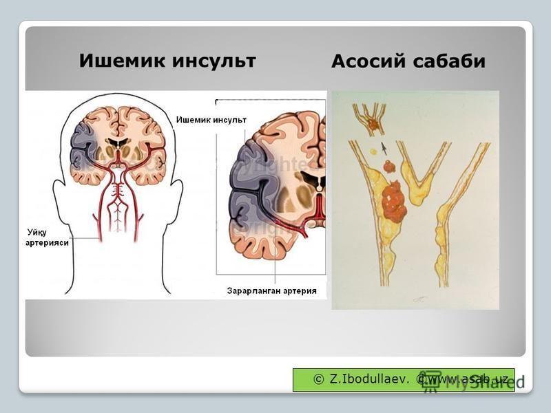 Ишемик инсульт Асосий собаки © Z.Ibodullaev. ©www.asab.uz