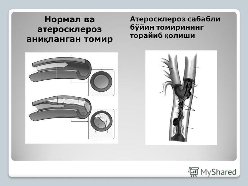 Нормал ва атеросклероз ани қ логан тамир Атеросклероз сабали бўйин тамирининг торайиб қ олеши