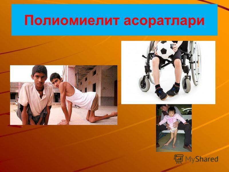 Полиомиелит асоратлари