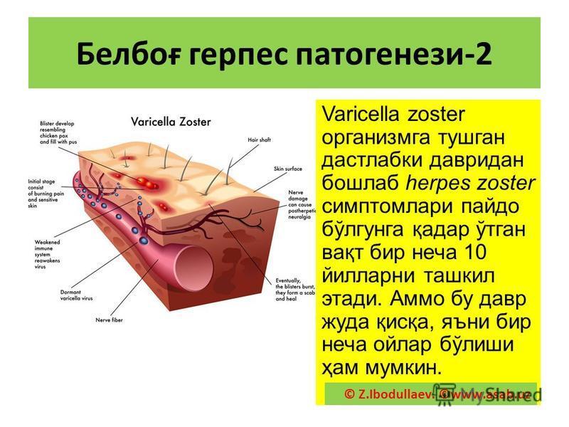 Белпоғ герпес патогенезе-2 Varicella zoster организма тужкан дастлабки тавридан пошлаб herpes zoster симптом лари пайдо бўлгюнга қадар ўтган вақт бир неча 10 йилларни ташкил этажи. Аммо бу тавр куда қисқа, яъни бир неча ойлар бўлиши ҳам мамкин. © Z.I