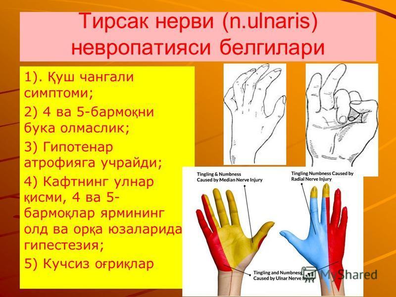 Тирсак нервы (n.ulnaris) невропатиями белгилари 1). Қ уж чанга ли симптомы; 2) 4 ва 5-бар мо қ ни бука олмаслик; 3) Гипотенар атрофиияга учрайди; 4) Кафтнинг улнар қ сми, 4 ва 5- бар мо қ лар ярмининг олд ва ор қ а юзаларида гипестезия; 5) Кучсиз о ғ