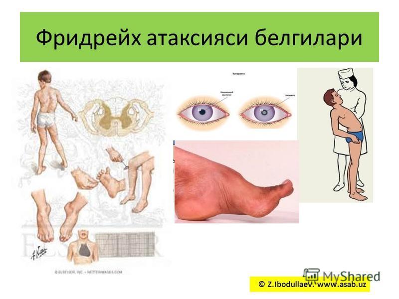 Фридрейх атаксия си белгилари © Z.Ibodullaev. www.asab.uz