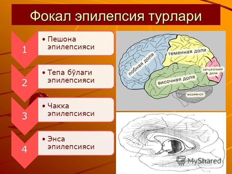 Фокал эпилепсия турлари 1 Пешона эпилепсияси 2 Тепа бўлаги эпилепсияси 3 Чакка эпилепсияси 4 Энса эпилепсияси