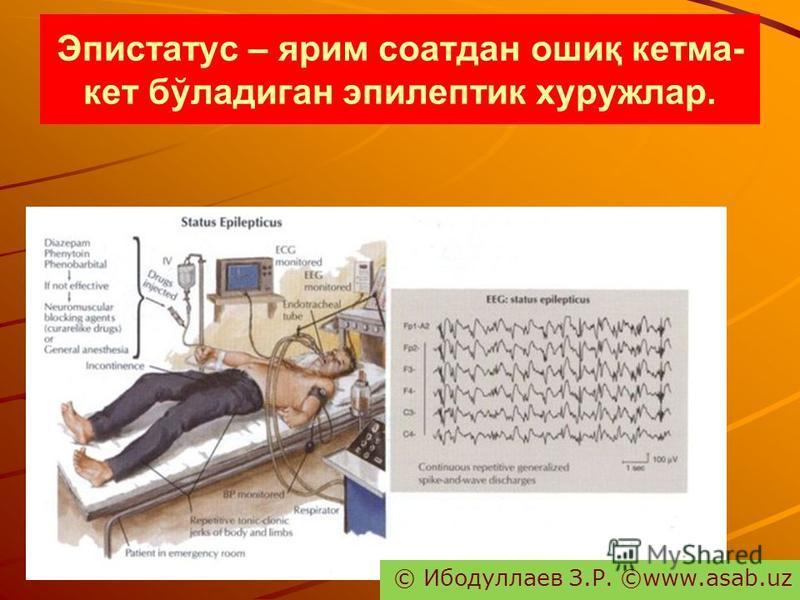Эпистатус – ярим соатдан ошиқ кетма- кет бўладиган эпилептик хуружлар. © Ибодуллаев З.Р. ©www.asab.uz