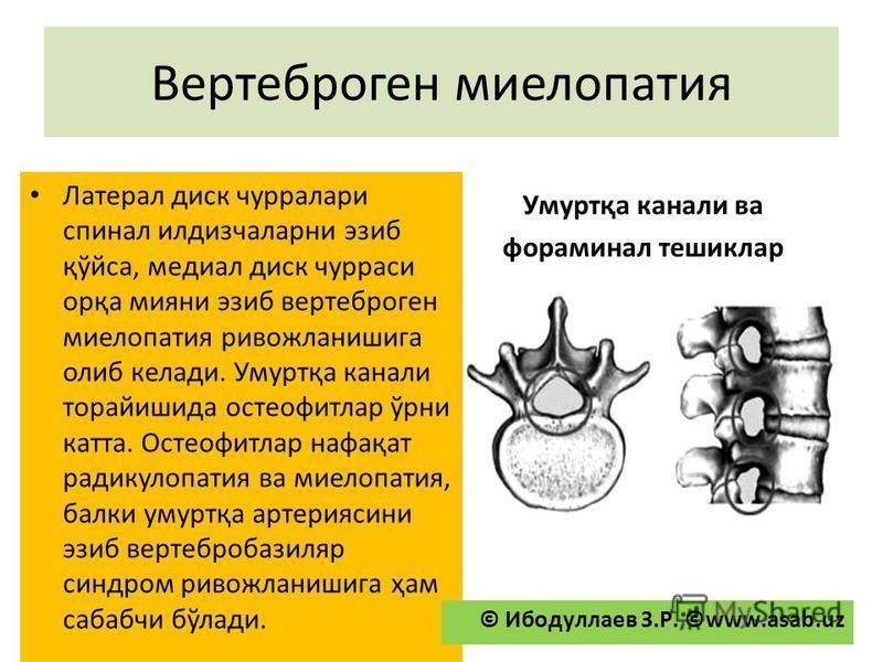 Вертеброген миелопатия Латерал диск чурралари спинал илдизчаларни эзиб қўйса, медиал диск чурраси орқа миани эзиб вертеброгеннаянононо миелопатия ривожланишига олби келади. Умуртқа каналы торайишида остеофитлар ўрни ката. Остеофитлар нафақат радикуло