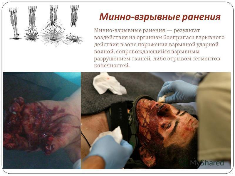 Минно - взрывные ранения Минно - взрывные ранения результат воздействия на организм боеприпаса взрывного действия в зоне поражения взрывной ударной волной, сопровождающийся взрывным разрушением тканей, либо отрывом сегментов конечностей.