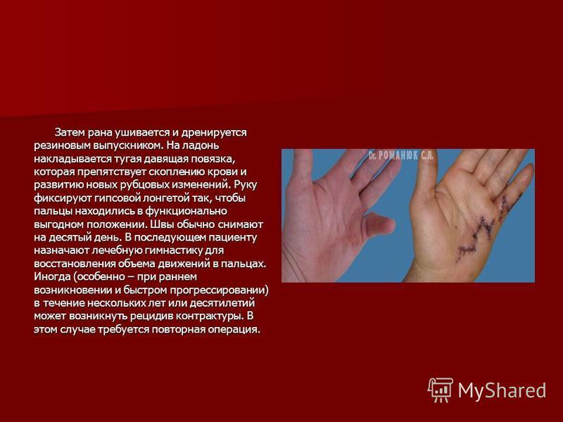 Затем рана ушивается и дренируется резиновым выпускником. На ладонь накладывается тугая давящая повязка, которая препятствует скоплению крови и развитию новых рубцовых изменений. Руку фиксируют гипсовой лонгетой так, чтобы пальцы находились в функцио