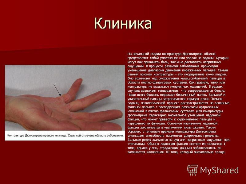 Клиника На начальной стадии контрактура Дюпюитрена обычно представляет собой уплотнение или узелок на ладони. Бугорки могут как причинять боль, так и не доставлять неприятных ощущений. В процессе развития заболевания происходит уменьшение диапазона д