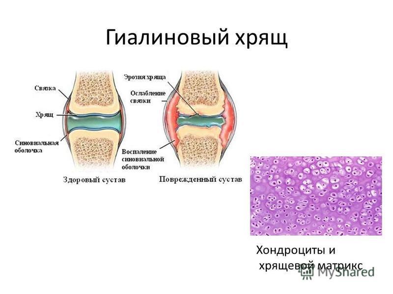 Гиалиновый хрящ Хондроциты и хрящевой матрикс