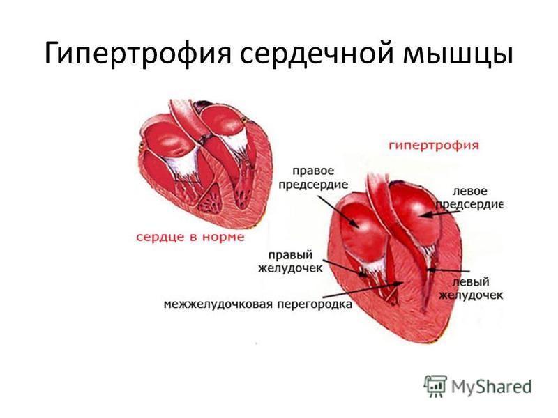 Гипертрофия сердечной мышцы