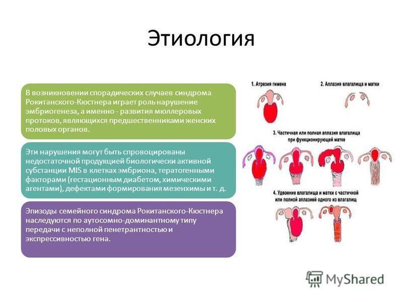 Этиология В возникновении спорадических случаев синдрома Рокитанского-Кюстнера играет роль нарушение эмбриогенеза, а именно - развития мюллеровых протоков, являющихся предшественниками женских половых органов. Эти нарушения могут быть спровоцированы