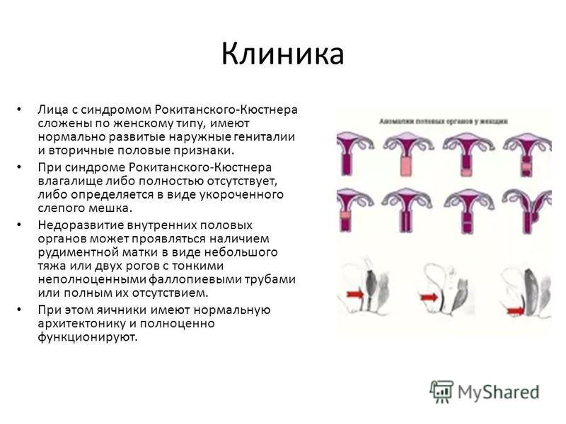 Клиника Лица с синдромом Рокитанского-Кюстнера сложены по женскому типу, имеют нормально развитые наружные гениталии и вторичные половые признаки. При синдроме Рокитанского-Кюстнера влагалище либо полностью отсутствует, либо определяется в виде укоро