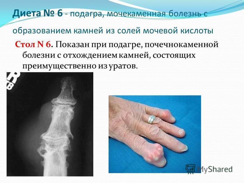 Диета 6 - подагра, мочекаменная болезнь с образованием камней из солей мочевой кислоты Стол N 6. Показан при подагре, почечнокаменной болезни с отхождением камней, состоящих преимущественно из уратов.