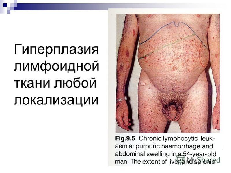 Гиперпла зия лимфоидной ткани любой локализации