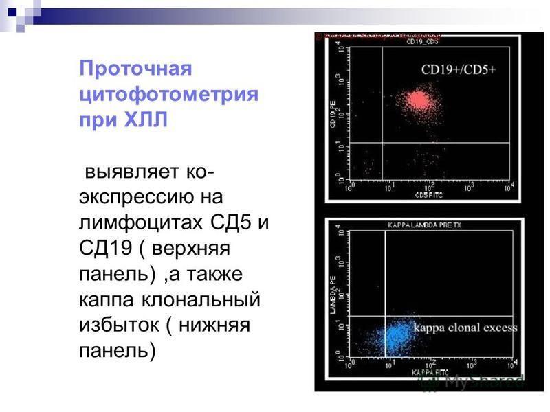 Дифференциальный диагноз В- ХЛЛ Фенотип Лимфома мантийной зоны Фолликулярная лимфома В-ХЛЛ CD19 +++ CD5 +–+ CD10 –+– CD23 –– + CD20 + + Легкие цепи Л> КЛ> КК > Л Cyclin D1 +––