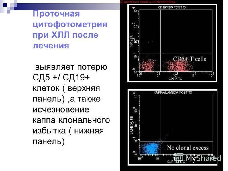 Проточная цитофотометрия при ХЛЛ выявляет ко- экспрессию на лимфоцитах СД5 и СД19 ( верхняя панель),а также каппа клональный избыток ( нижняя панель)