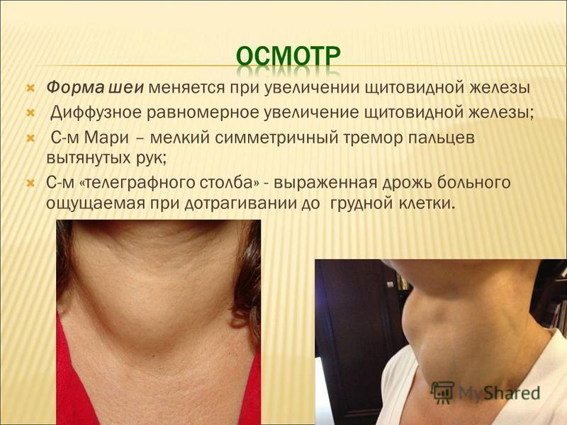 Форма шеи меняется при увеличении щитовидной железы Диффузное равномерное увеличение щитовидной железы; С-м Мари – мелкий симметричный тремор пальцев вытянутых рук; С-м «телеграфного столба» - выраженная дрожь больного ощущаемая при дотрагивании до г