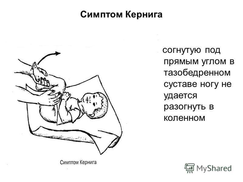 Симптом Кернига согнутую под прямым углом в тазобедренном суставе ногу не удается разогнуть в коленном