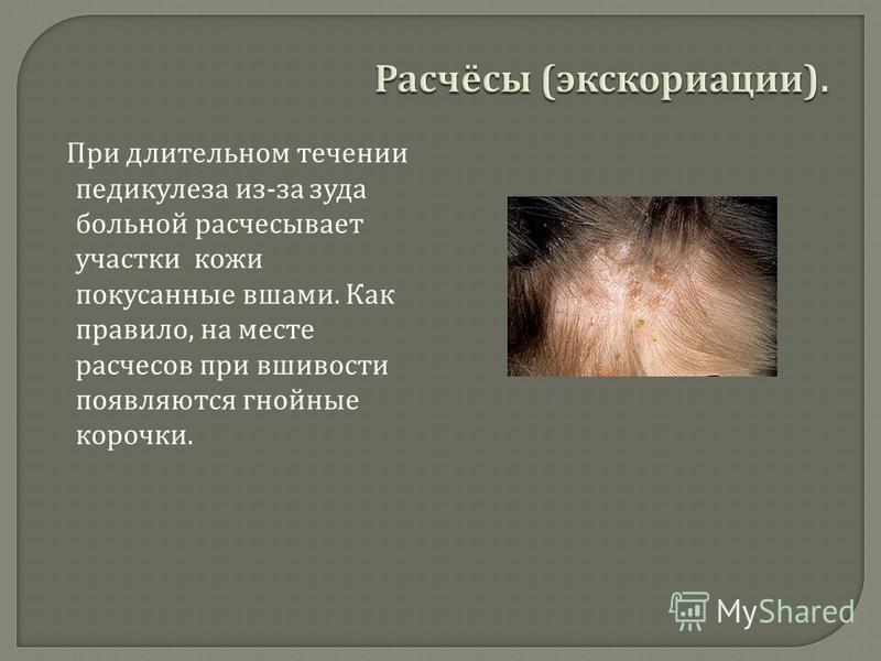 При длительном течении педикулеза из - за зуда больной расчесывает участки кожи покусанные вшами. Как правило, на месте расчесов при вшивости появляются гнойные корочки.