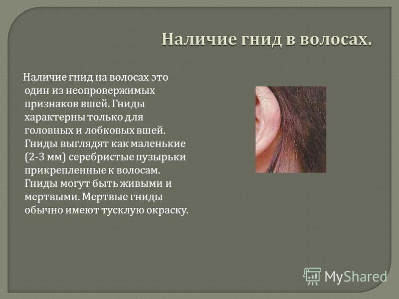Наличие гнид на волосах это один из неопровержимых признаков вшей. Гниды характерны только для головных и лобковых вшей. Гниды выглядят как маленькие (2-3 мм ) серебристые пузырьки прикрепленные к волосам. Гниды могут быть живыми и мертвыми. Мертвые