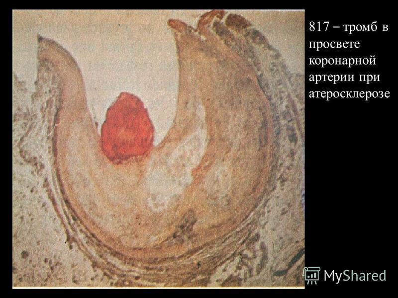 817 – тромб в просвете коронарной артеррии при атеросклерозе