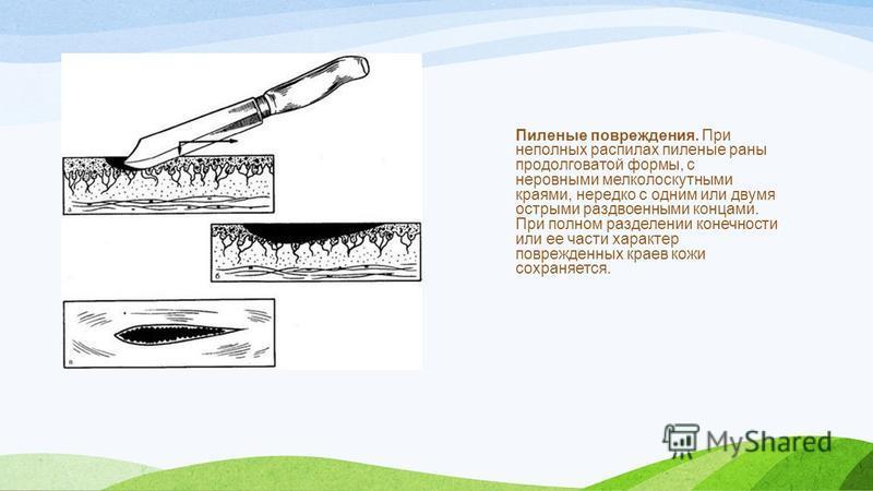 Пиленые повреждения. При неполных распилах пиленые раны продолговатой формы, с неровными мелколоскутными краями, нередко с одним или двумя острыми раздвоенными концами. При полном разделении конечности или ее части характер поврежденных краев кожи со