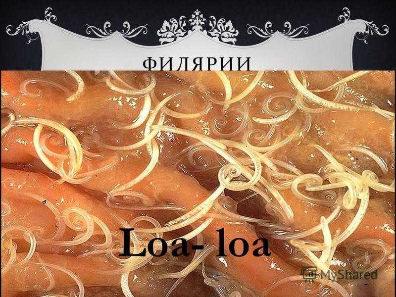 ФИЛЯРИИ Loa- loa