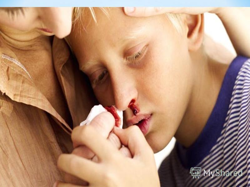 * Проявления гемофилии. * Чем тяжелее гемофилия, тем раньше проявляются признаки кровоточивости. Неизбежные падения и ушибы, которые случаются у ребенка, начинающего ходить, могут вызвать синяки на коже и кровотечения из слизистых оболочек губ и язык