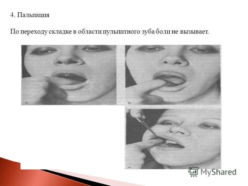 4. Пальпация По переходу складке в области пульпитного зуба боли не вызывает.