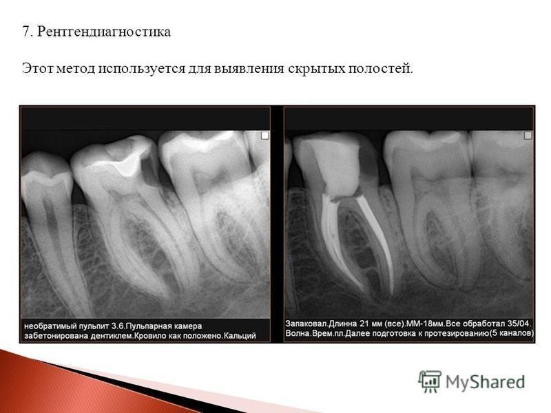 7. Рентгендиагностика Этот метод используется для выявления скрытых полостей.