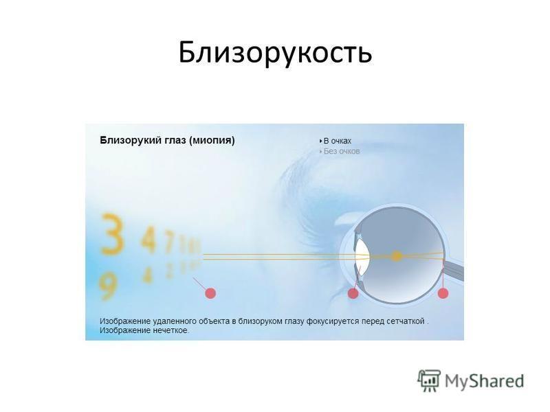 Презентация на тему Реферат на тему Новый вид лазерной  Близорукость