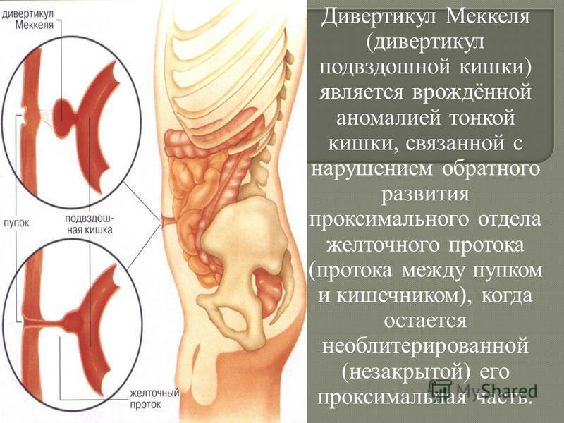 Дивертикул Меккеля (дивертикул подвздошной кишки) является врождённой аномалией тонкой кишки, связанной с нарушением обратного развития проксимального отдела желточного протока (протока между пупком и кишечником), когда остается необлитерированной (н
