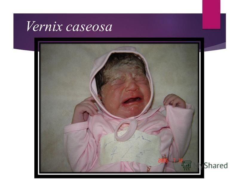 Vernix caseosa