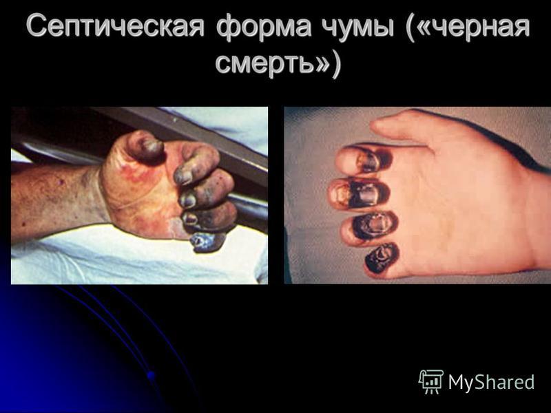 Септическая форма чумы («черная смерть»)