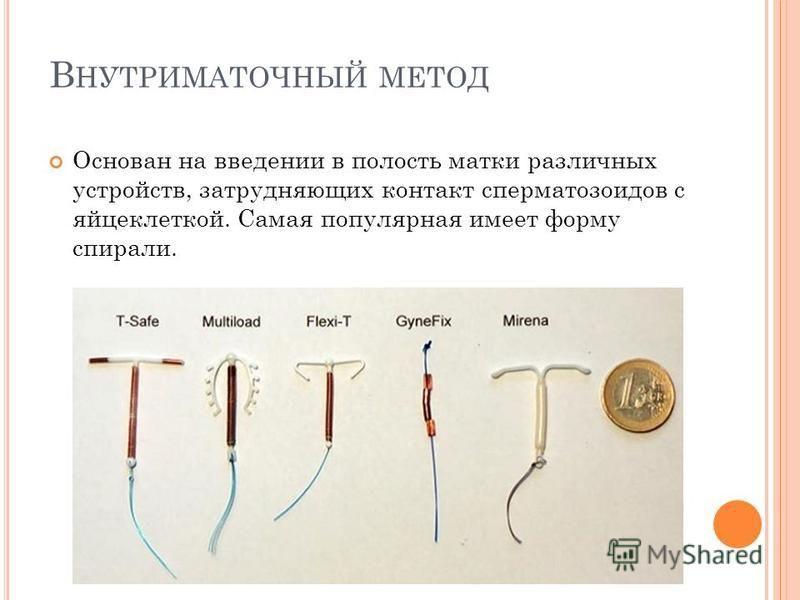 В НУТРИМАТОЧНЫЙ МЕТОД Основан на введении в полость матки различных устройств, затрудняющих контакт сперматозоидов с яйцеклеткой. Самая популярная имеет форму спирали.