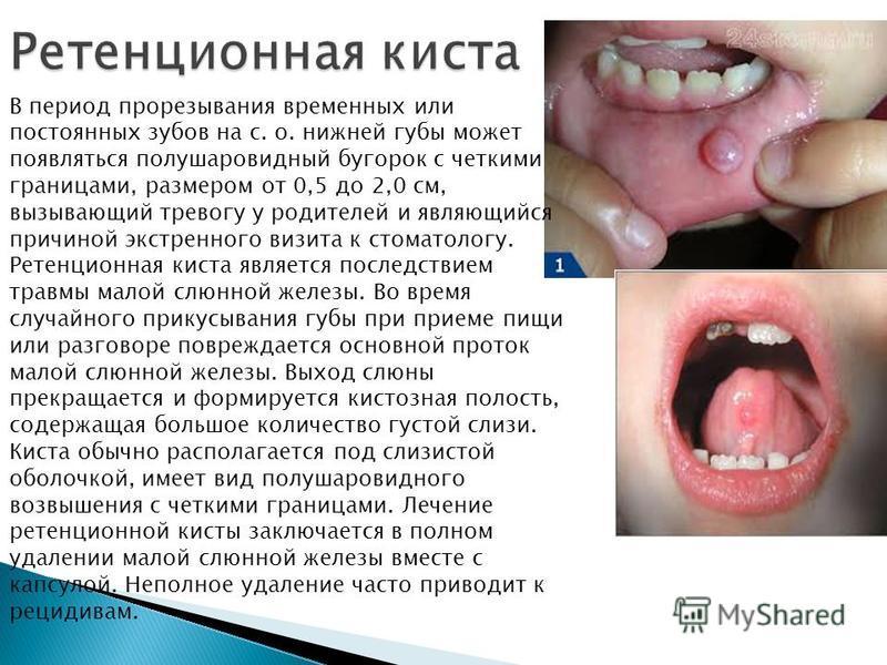 В период прорезывания временных или постоянных зубов на с. о. нижней губы может появляться полушаровидный бугорок с четкими границами, размером от 0,5 до 2,0 см, вызывающий тревогу у родителей и являющийся причиной экстренного визита к стоматологу. Р