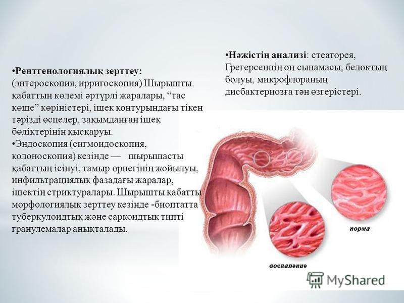 Рентгенологиялық зерттеу: (энтероскопия, ирригоскопия) Шырышты қабаттың көлемі әртүрлі жара лары, тассс көше көріністері, ішек контурындағы тікен тәрізді өспелер, зақымданған ішек бөліктерінің қысқаруы. Эндоскопия (сигмоидоскопия, колоноскопия) кезін